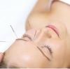针灸止痛奇佳 治疗各类头痛疾病