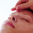 针灸有效治疗黑眼圈