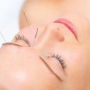 如何有效减轻疼痛 针灸有镇痛效果