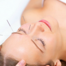 遵守三个原则 女人针灸可美容