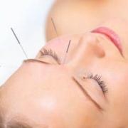 女性美容针灸常用穴位 根据情况选治疗方