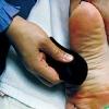 冬季手脚冰凉 刮手部足部穴位缓解