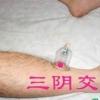 中医拔罐常用的防治疾病的九大穴位