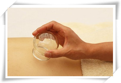 拔罐治疗女性经期偏头痛